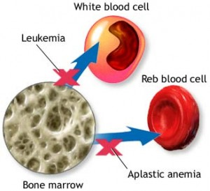 el tratamiento de la leucemia mieloide: